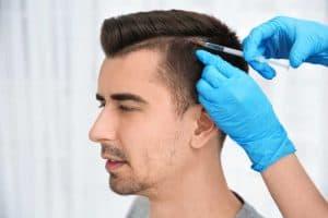 השתלת שיער: כל מה שחשוב לדעת