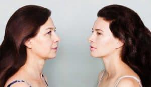 כיצד מתבצע ניתוח מתיחת פנים