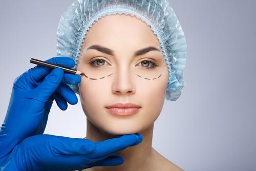 מידע על ניתוח עפעפיים
