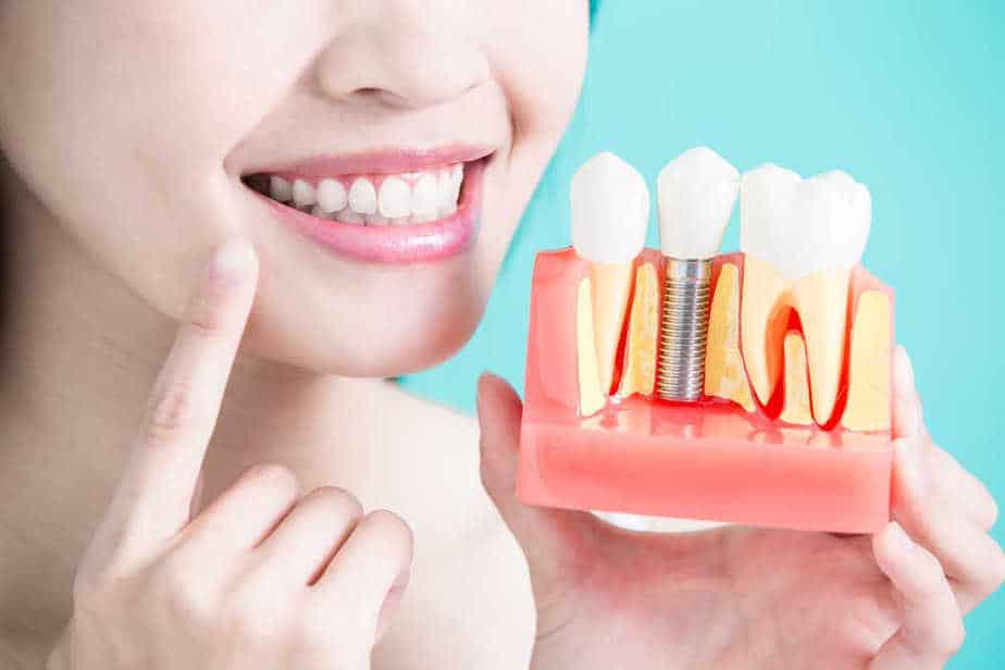 השתלות שיניים – מידע על ההליך