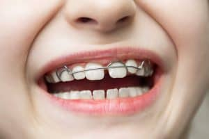 ילדה מחייכת עם רסן לשיניים