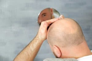 איפה עדיף לעשות השתלת שיער בטורקיה או בישראל?