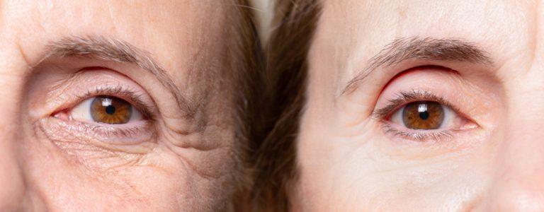 אישה מבוגרת לפני ואחרי טיפול שקעי עיניים ללא קמטים