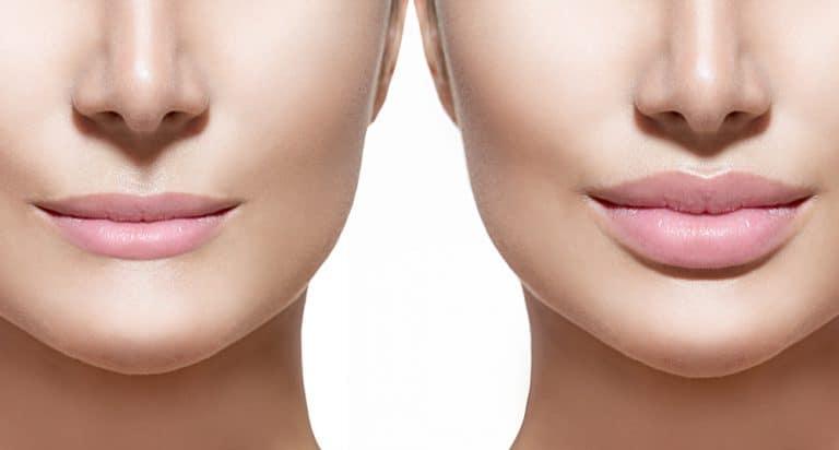 תמונה של שפתיים של אישה לפני ואחרי תהליך עיבוי שפתיים