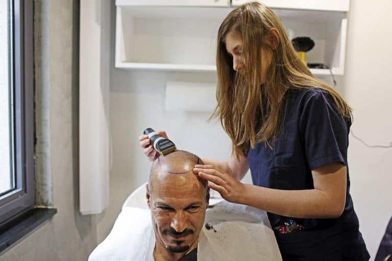 אישה מטפלת בגבר באמצע הליך השתלת השיער בטורקיה