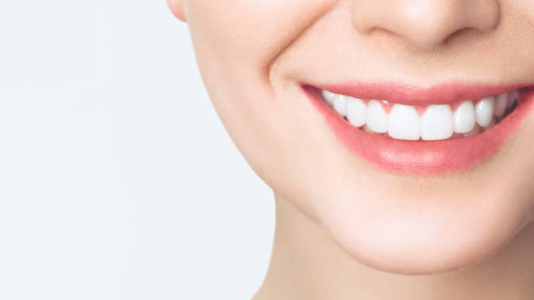 אישה מחייכת עם שיניים לבנות