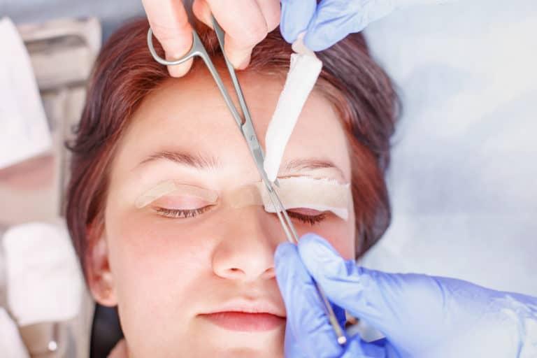 אישה באמצע ניתוח עפעפיים