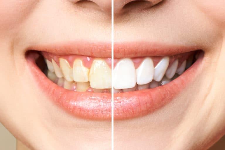 הלבנת שיניים לפני ואחרי