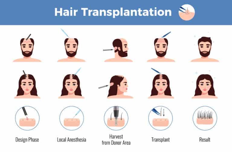 השתלת שיער גברים ונשים אינפוגרפיקה